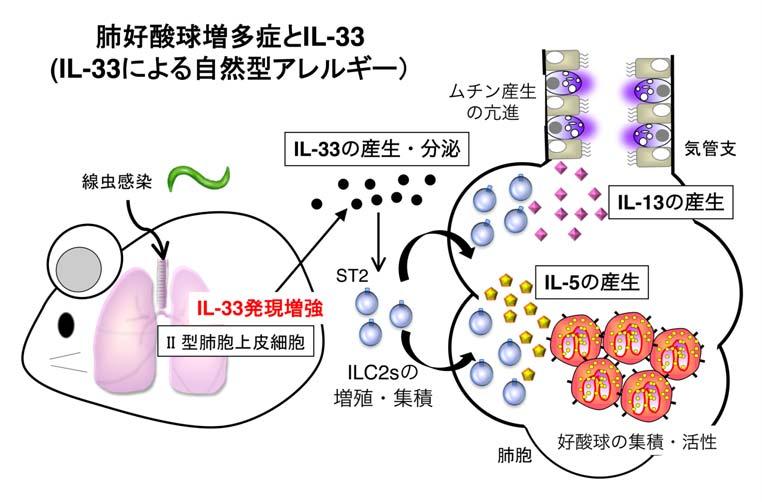 症候群 マスト 化 細胞 活性